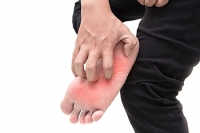 Common Symptoms of Athlete's Foot
