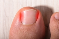 Symptoms of Ingrown Toenails