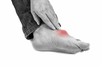 How Do Bunions Form?